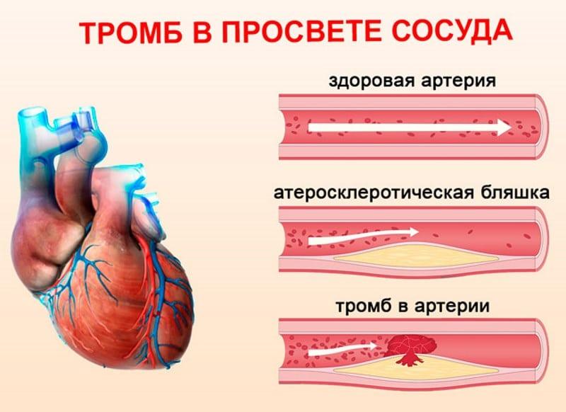 что происходит с сосудами при курении