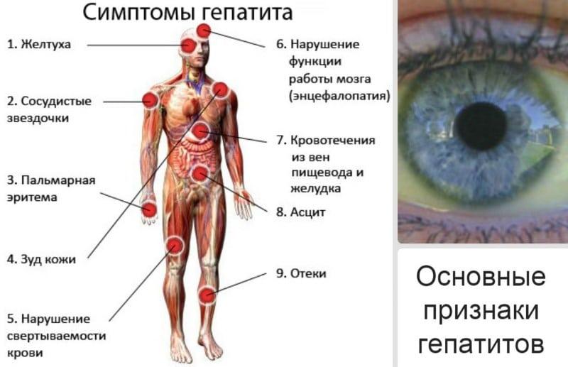 хронический токсический гепатит