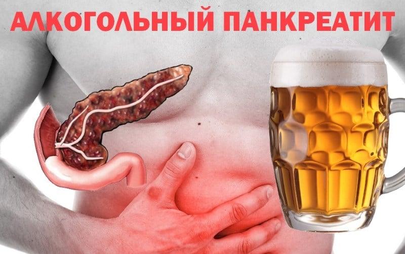 алкогольный панкреатит симптомы лечение