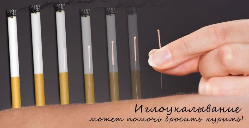иглоукалывание от курения отзывы
