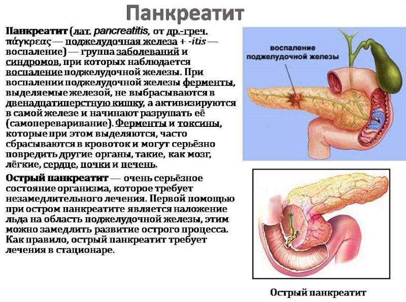 алкоголь при панкреатите поджелудочной железы