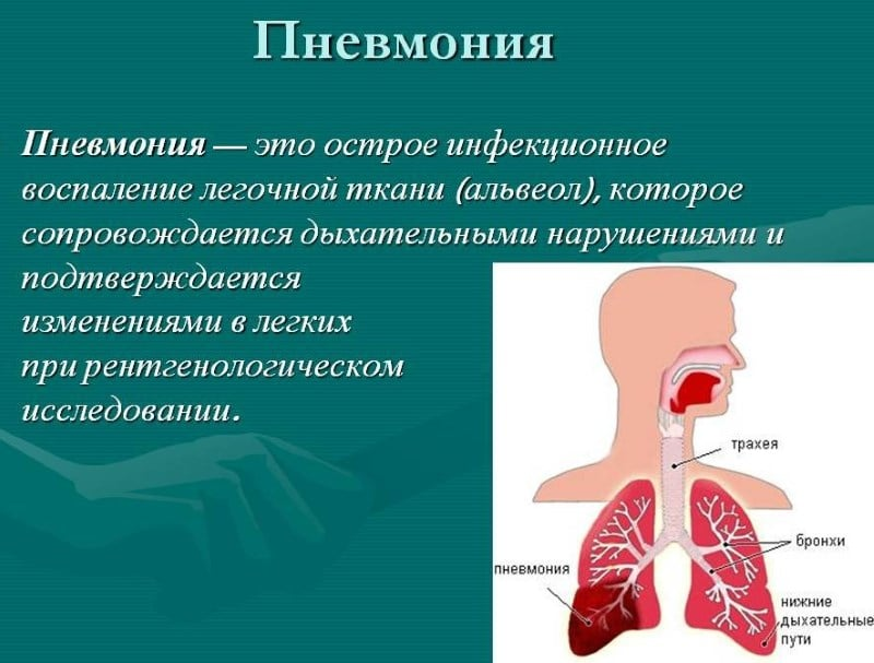 курение при пневмонии легких