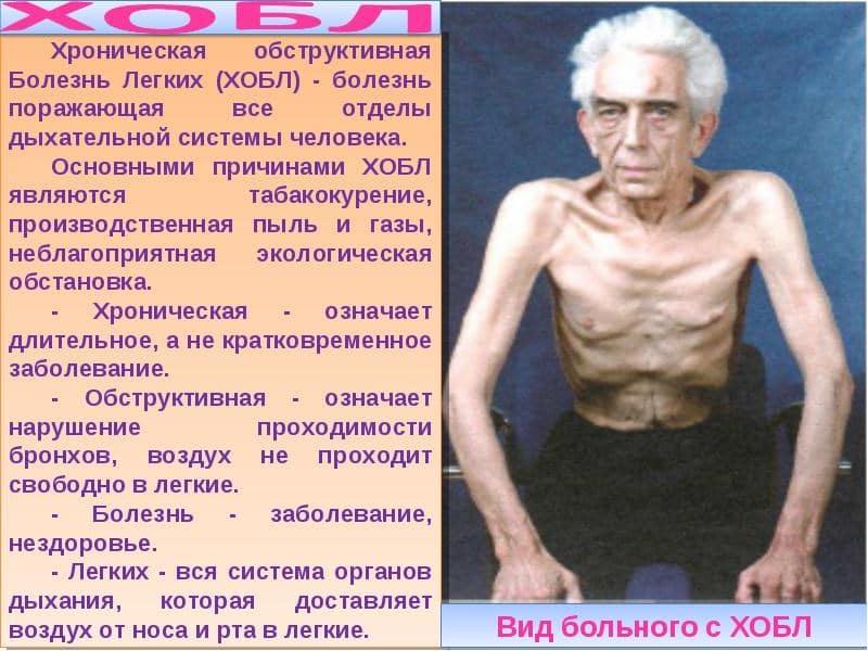пневмония от курения