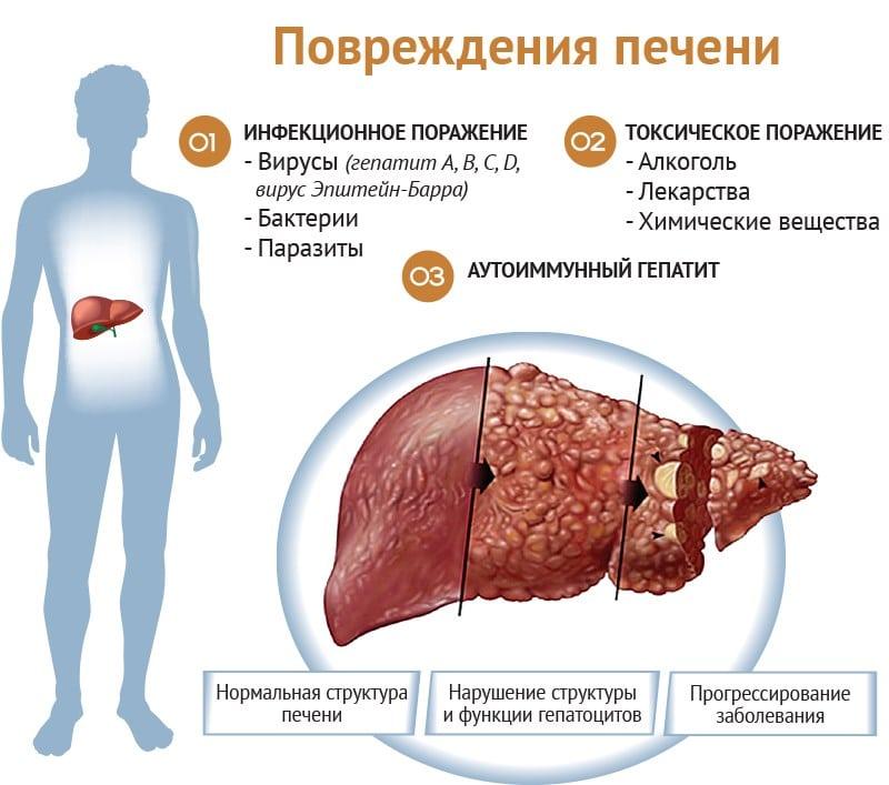 симптомы алкогольной болезни печени