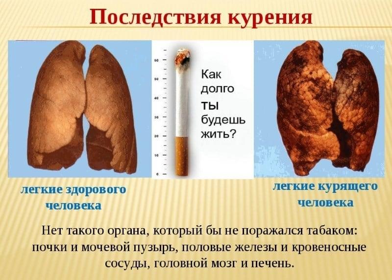 Если курить то можно похудеть