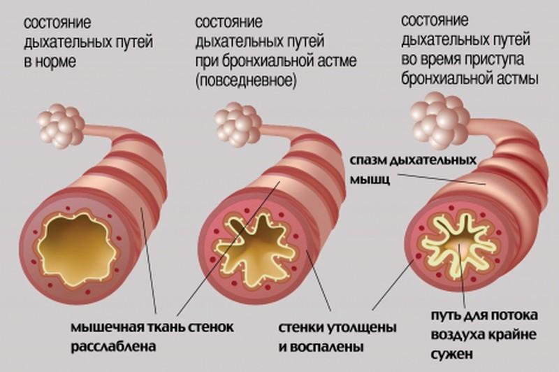 курить при бронхиальной астме