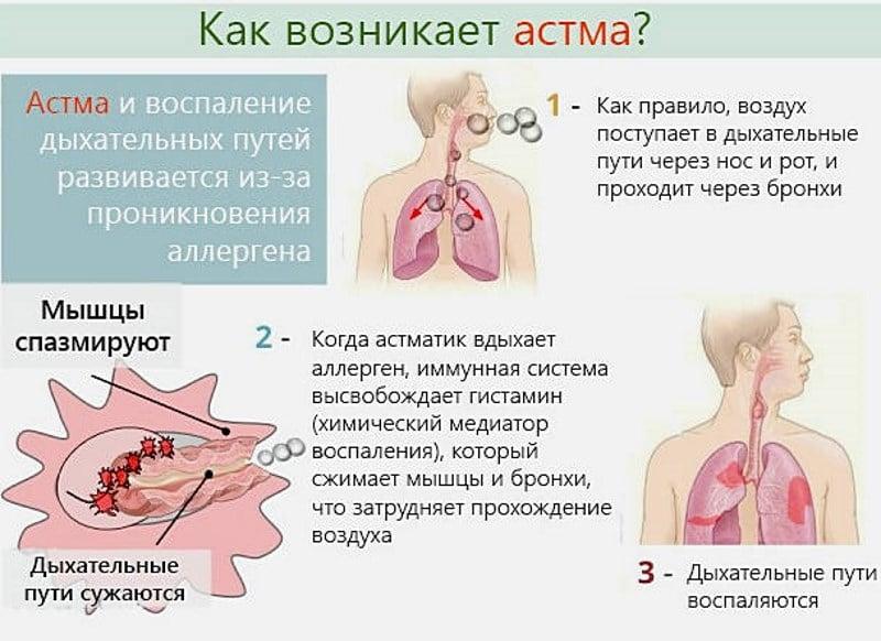 можно ли кеторол при бронхиальной астме