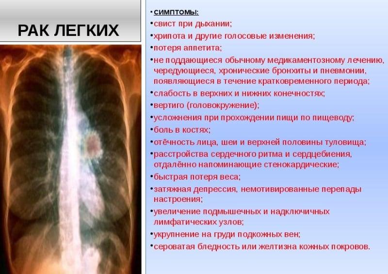 рак легких от курения статистика