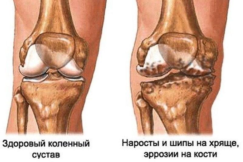 почему болят колени после алкоголя