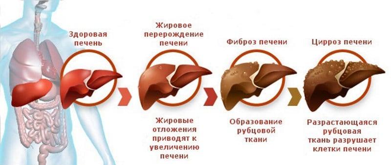 классификация цирроза печени по Чайлд Пью