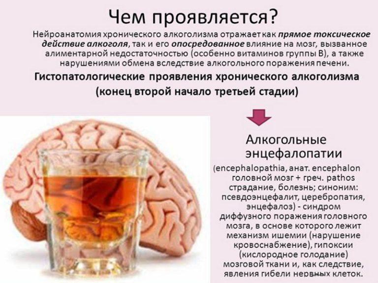 Влияние алкоголя на мозг и нервную систему
